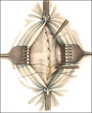 сшивание собственных тканей пациента