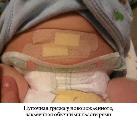 пупочная грыжа у новорожденного, заклеенная обычными пластырями