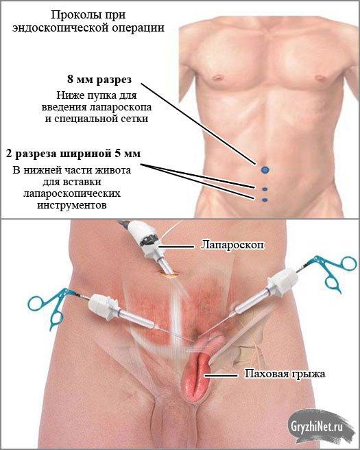 эндоскопическая операция при паховой грыже у мужчин