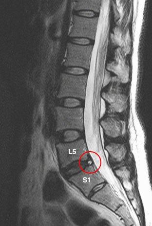 рентгеновский снимок грыжи поясничного отдела L5–S1