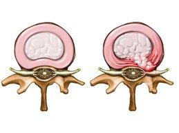 Симптомы межпозвонковой грыжи в пояснице – полный обзор