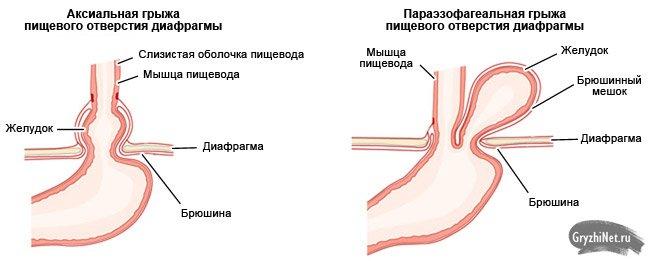 аксиальная грыжа пищеводного отверстия диафрагмы