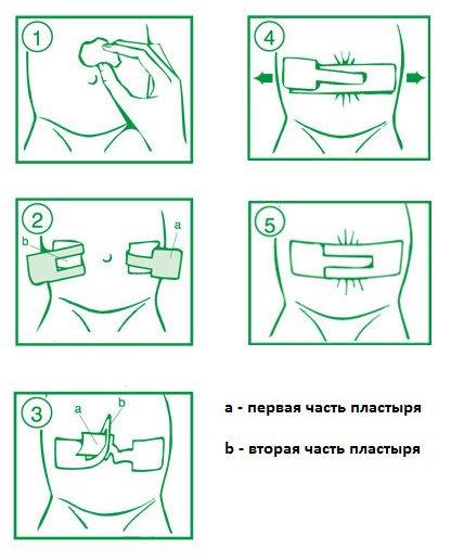 инструкция: как одевать пластырь Порофикс