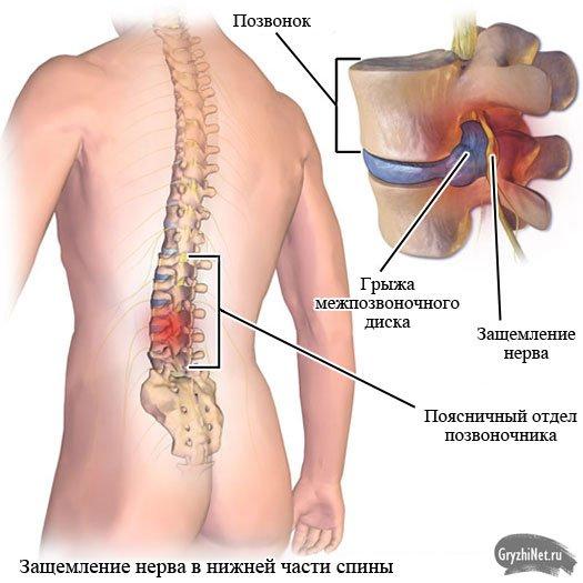 Болит внизу спины с правой и левой стороны