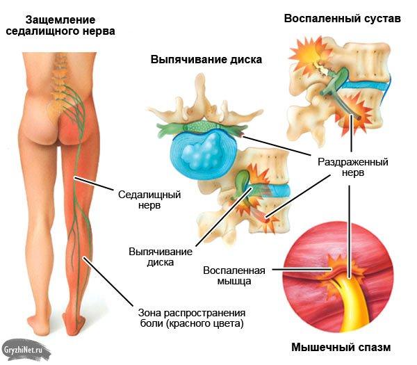 боли в ноге при грыже поясничного отдела позвоночника