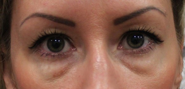 Грыжи под глазами: как избавиться без операции