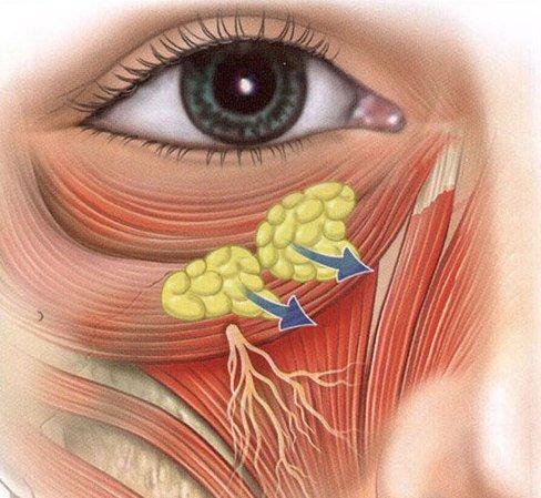 образование жировой прослойки при грыже под глазами