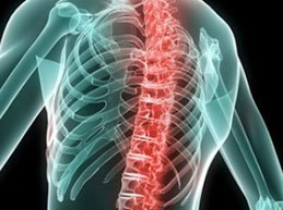 Симптомы межпозвоночной грыжи грудного отдела: полный обзор