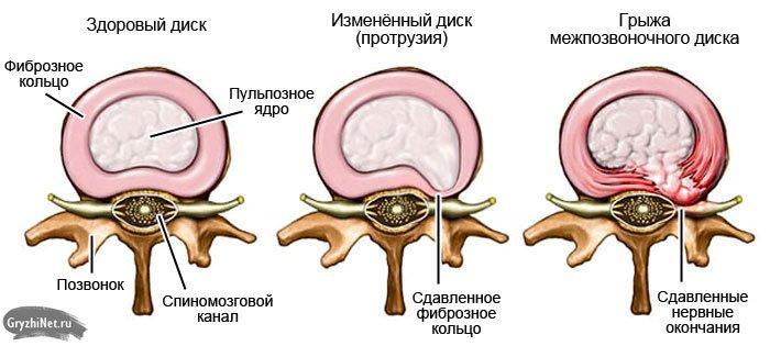 стадии разрушения межпозвоночного диска