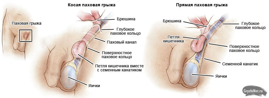 Водянка яичка и семенного канатика фото