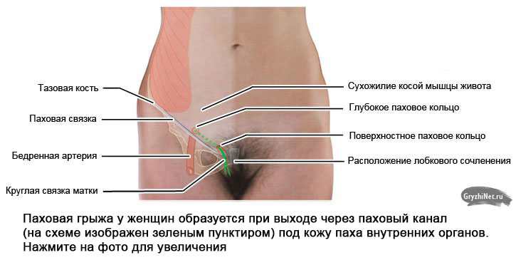 схема расположения пахового канала у женщин