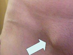 грыжевое выпячивание в паху у женщины