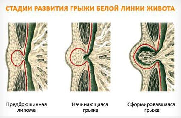 стадии развития грыжи белой линии живота