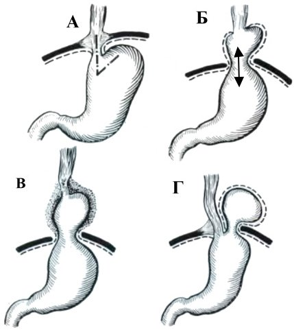 схематическое изображение трех типов грыж пищевода