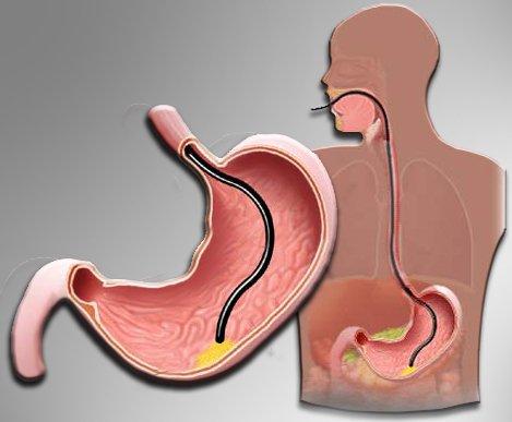 осмотр желудка с помощью фиброгастроскопа