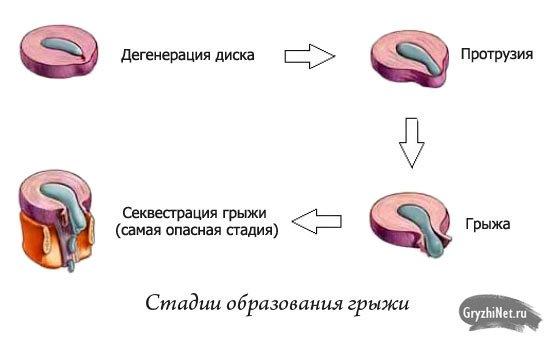 стадии образования грыжи межпозвоночного диска