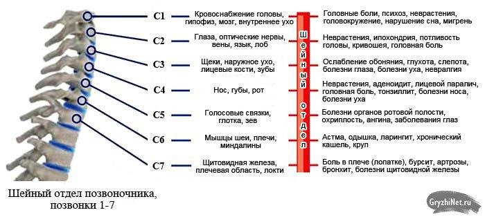 симптомы грыжи в шейном отделе в зависимости от того, какой межпозвоночный диск поражен