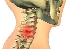 Межпозвонковая грыжа шейного отдела: суть болезни, признаки, лечение