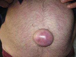 Обзор всех возможных симптомов пупочной грыжи