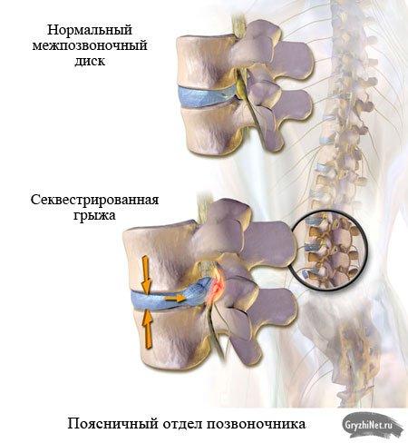 секвестрированная грыжа поясничного отдела позвоночника