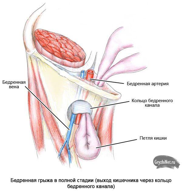 схематическое изображение выхода кишечника через кольцо бедренного канала