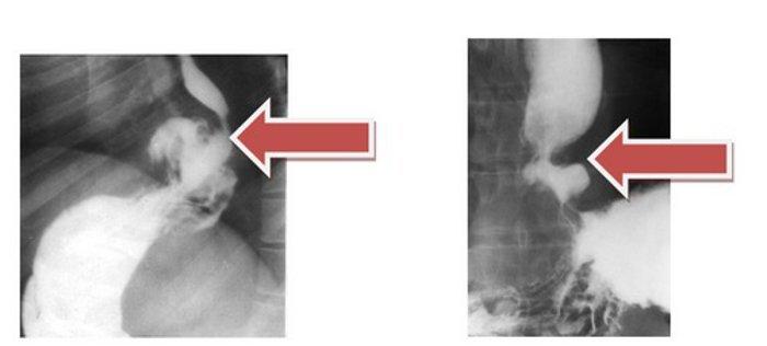 рентгенограмма грудной клетки больного с диафрагмальной грыжей
