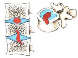 Грыжи Шморля: что это такое, симптомы, лечение, возможные последствия