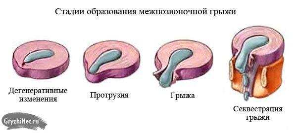 стадии образования и развития межпозвоночной грыжи