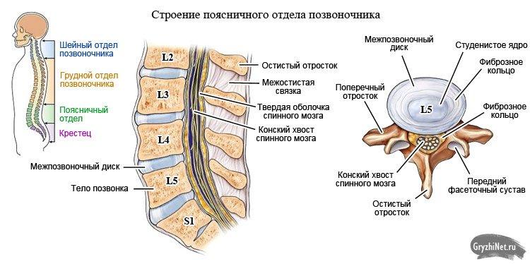 Задняя правосторонняя парамедианная грыжа диска l5 s1 лечение