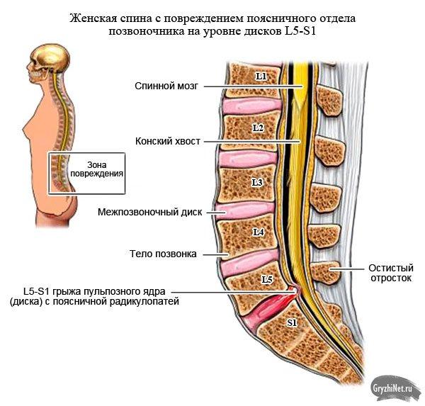 Mp признаки межпозвоночного остеохондроза и . протрузия l5-s1