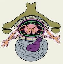 парамедиальная межпозвоночная грыжа