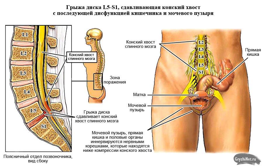 симптомы грыжи диска L5 S1