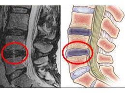 Грыжа межпозвоночного диска L5 S1: виды, симптомы и лечение