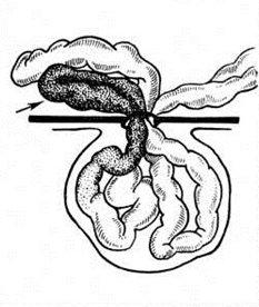 ущемленные петли кишечника в брюшной полости