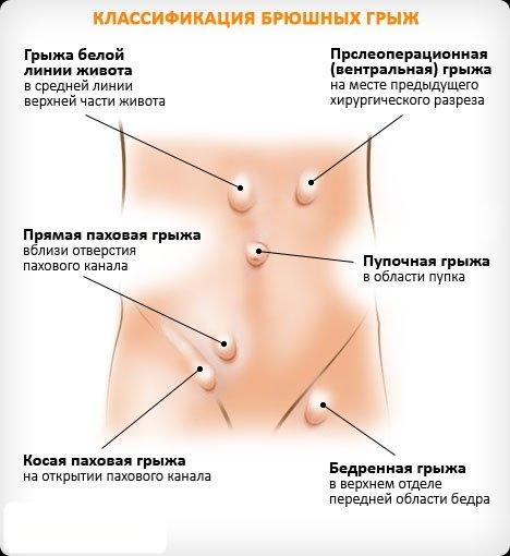 варианты расположения брюшных грыж