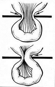 одна ущемленная петля кишечника