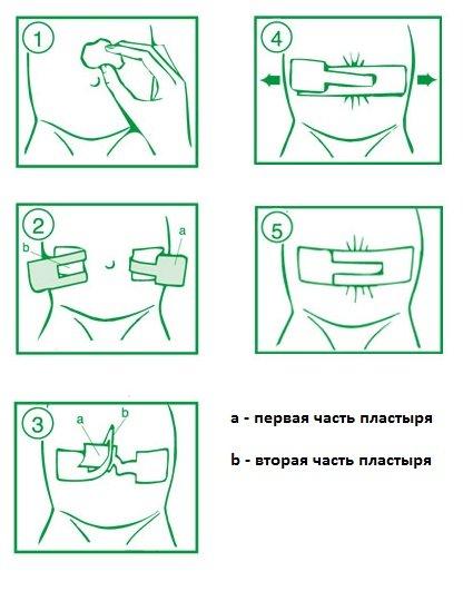 инструкция по использованию пластыря Porofix