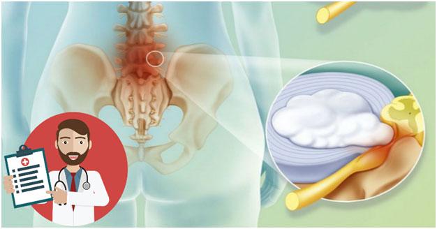 Лечение межпозвоночной грыжи поясничного отдела позвоночника без операции