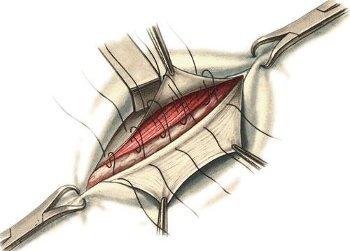 сшивание грыжи собственными тканями пациента