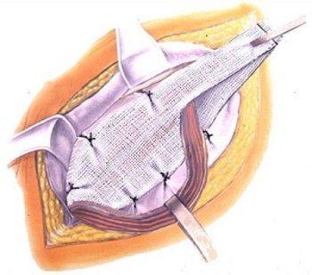 сшивание грыжи с применением сетки