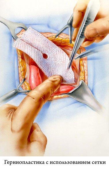 наложение сетки-имплантата