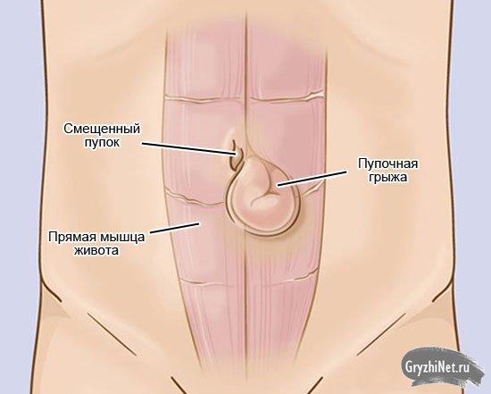 Грыжа пупочная у мужчин лечение без операции народные средства