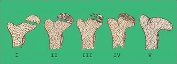 пять стадий болезни Пертеса