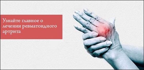 Биологические препараты для лечения ревматоидного артрита