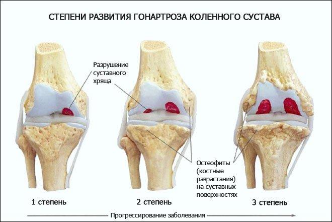 Гипартроз коленного сустава остеофиты тазобедренных суставов