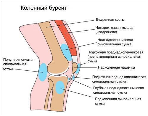 Разновидности бурсита коленного сустава дисплазия коленных суставов у подростков