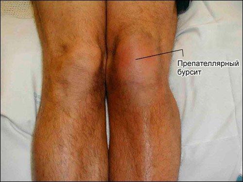 Бурсит коленного сустава что это такое фото отек околосуставных тканей