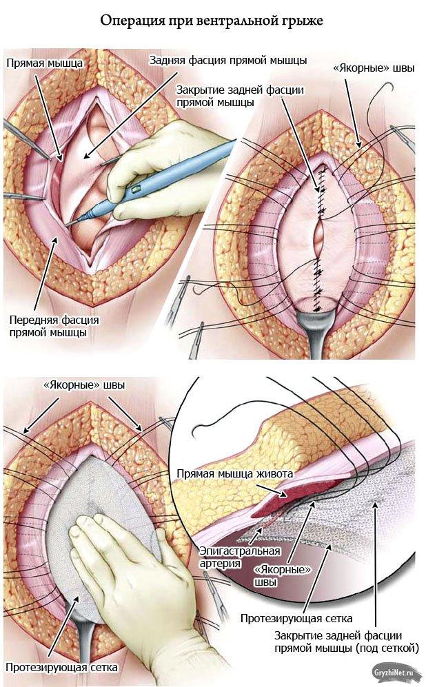 операция при вентральной грыже