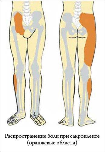 симптомы и лечение ревматизма в бедре