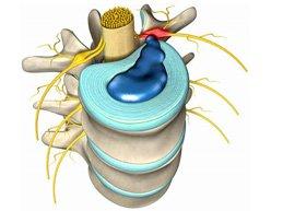 Характеристика межпозвоночной грыжи: симптомы, диагностика, лечение